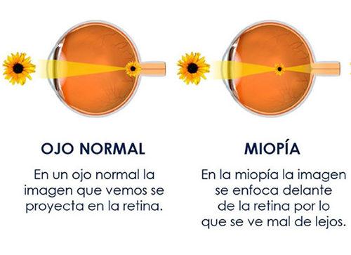 ojo normaly ojo miope