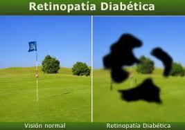 modavision retinopatia